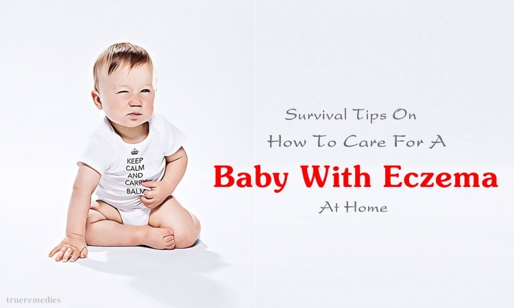 tips on how to care for a baby with eczema