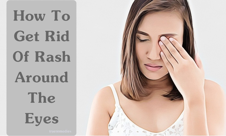how to get rid of rash around the eyes naturally