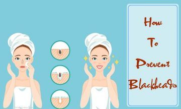 how to prevent blackheads naturally