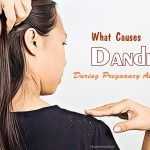 what causes dandruff during pregnancy