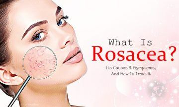 what is rosacea? how to treat it