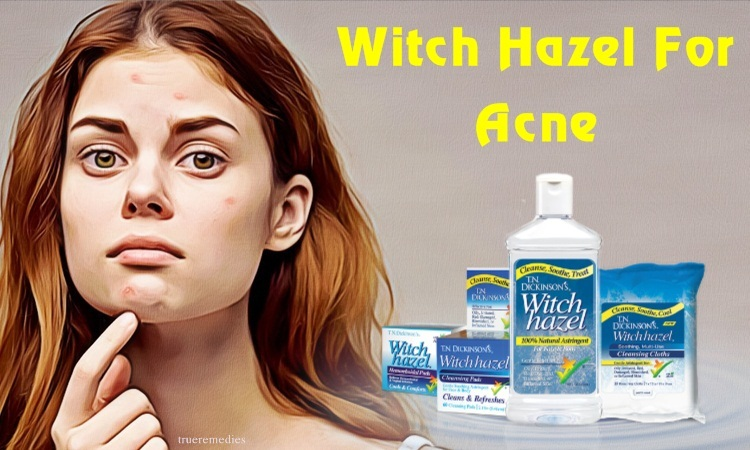 witch hazel for acne treatment
