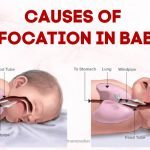 common causes of suffocation in babies