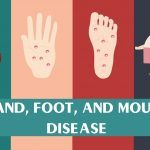 hand, foot, and mouth disease in children