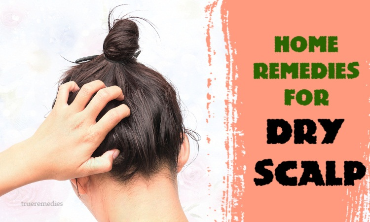 best home remedies for dry scalp